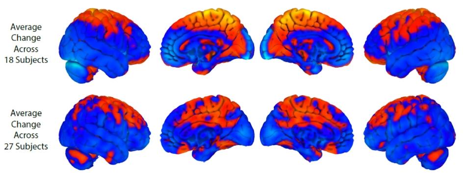 Cambios cerebro en vuelo espacial